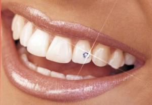 bijou sur la dent, strass