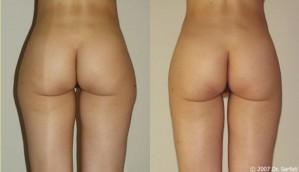 chirurgie esthétique liposuccion