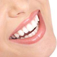 Blanchiment des dents les différentes techniques